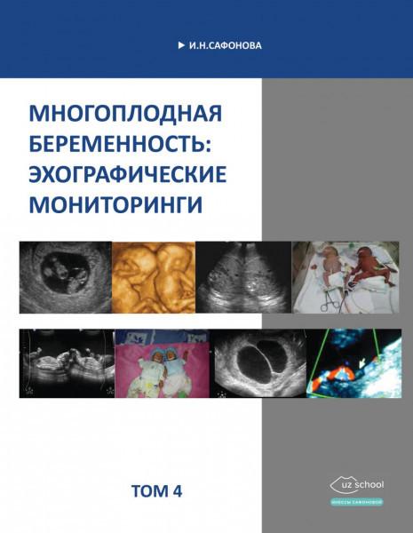 Фото - Многоплодная беременность: эхографические мониторинги. Том 4. - И.Н.Сафонова.